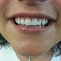 twinkling smiles teeth whitening reviews
